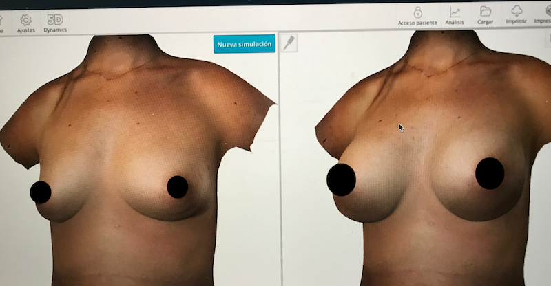 simulación en 3d de aumento mamario